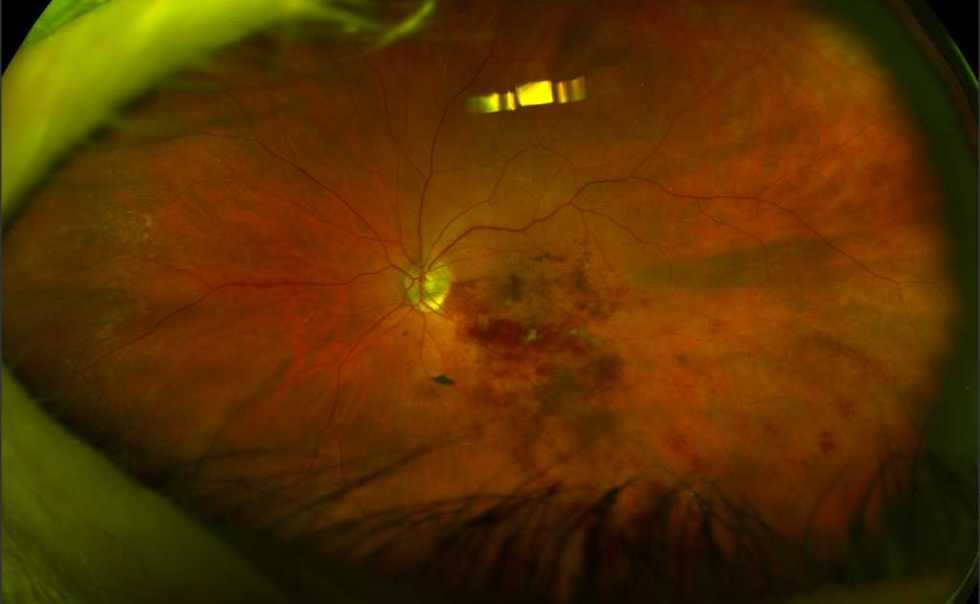 Our Optos will capture an image of the back of your eye. Easily e-mailed!