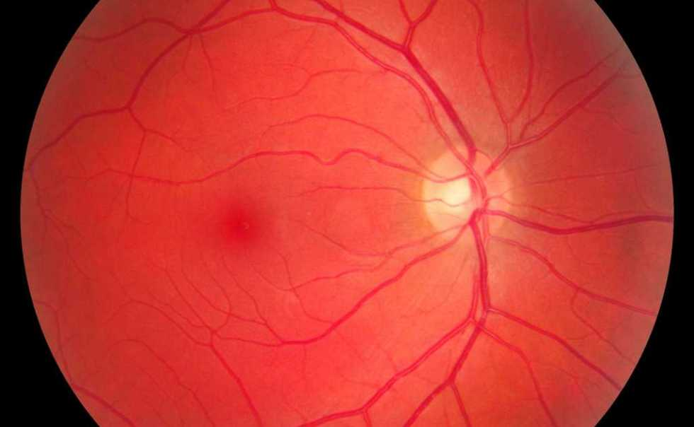 Retinal Fundus Photograph